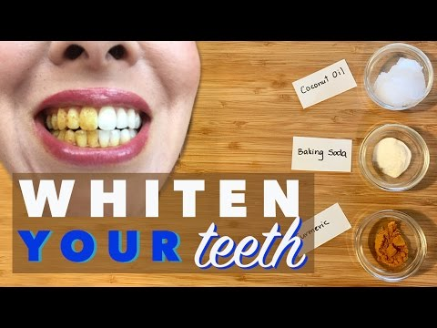 Teeth Whitening with Turmeric, Coconut Oil, Baking Soda | Natural & Safe