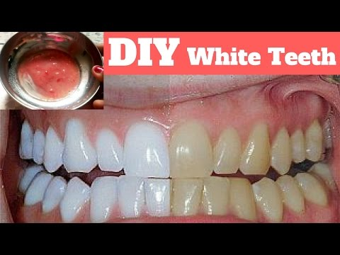 How to whiten teeth at Home /How to remove teeth discoloration
