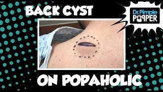 Back Cyst on a Popaholic... baby!