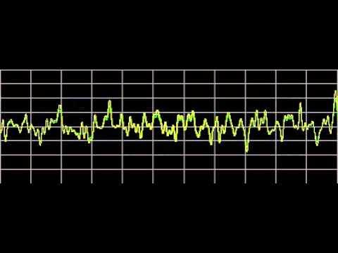 Cluster Headaches - Rife Frequencies