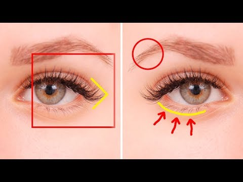 5 Things Your Eyes Are Trying To Tell You About Your Health