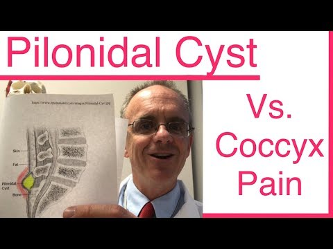 Do you have a PILONIDAL CYST, or is it Coccyx Pain, Tailbone Pain