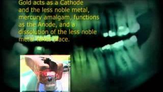 Quecksilber   The Strange Story of Dental Amalgam 2004 (mercury filling poison)