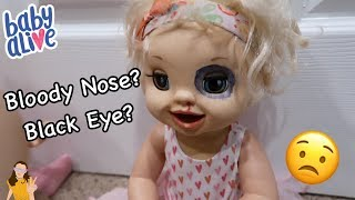 Download Baby Alive Emma Gets a Black Eye & Bloody Nose?! 😳 | Kelli Maple Video