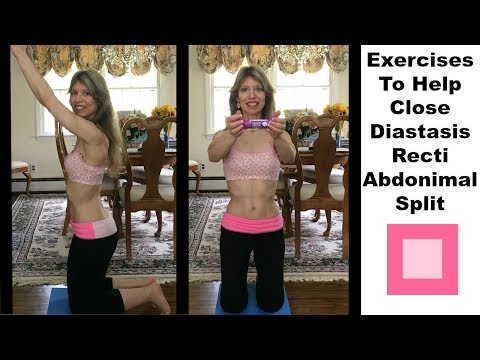 Exercises To Help Close/Repair a Diastasis Recti 2 Abdominal Split Separation