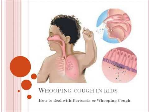 Whooping cough in kids