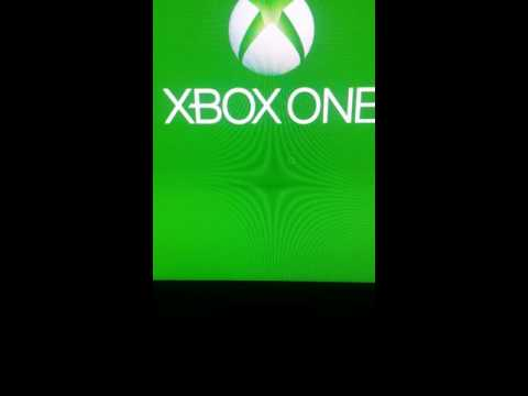 How To Fix Open Nat Strict Nat Fixed Xbox One Works Everytime