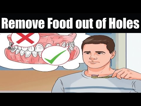 How to Remove Food out of Holes from Extracted Wisdom Teeth