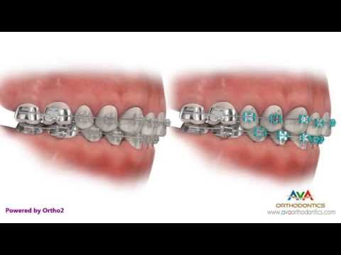 Different Types of Braces: Metal, Clear (Ceramic), Hidden