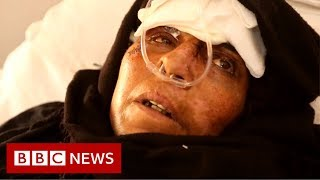 The secret hospitals hiding from air strikes - BBC News