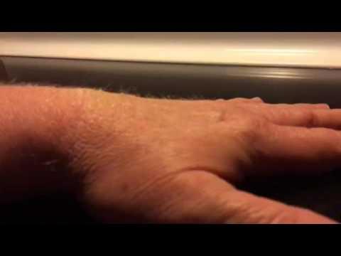 Dehydration pinch test