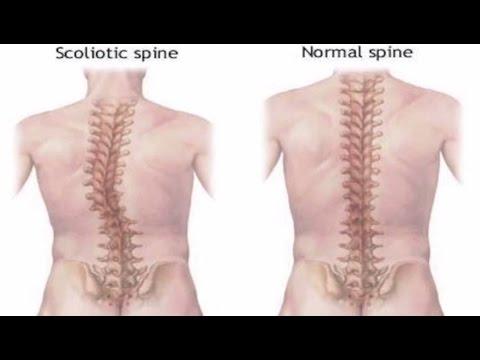 Scoliosis Treatment! Subliminal Binaural Beats Hypnosis Biokinesis Frequencies