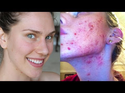 DIET I USED TO CURE MY ACNE AND CLEAR MY SKIN (PART 3)