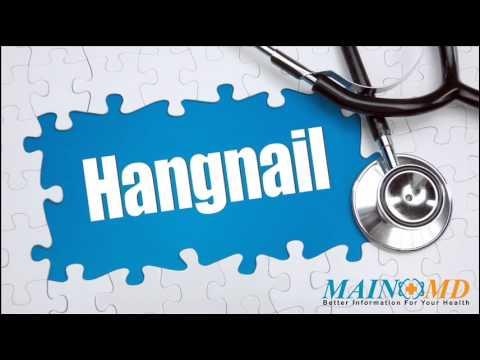 Hangnail ¦ Treatment and Symptoms