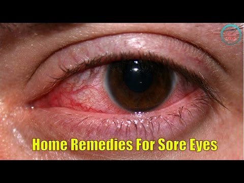 Top 20 Home Remedies For Sore Eyes