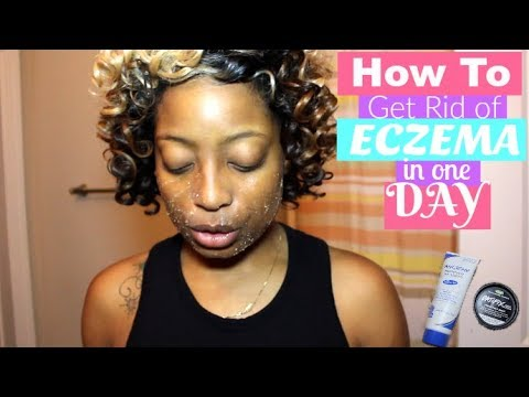 *MUST WATCH* HOW TO GET RID OF ECZEMA IN ONE DAY