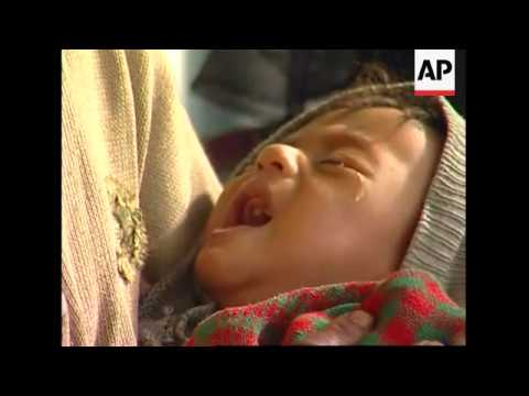 UNICEF says 126-thousand children suffering severe malnutrition due to drought