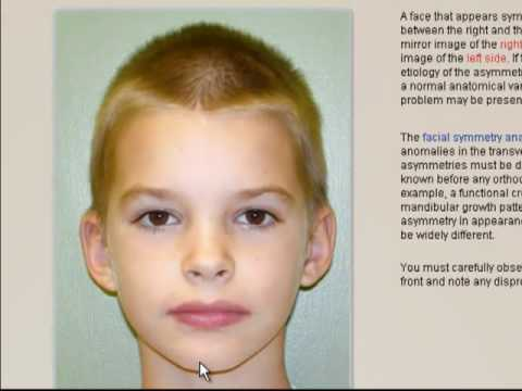 Orthodontics: Importance of  the facial symmetry analysis to help diagnose malocclusions