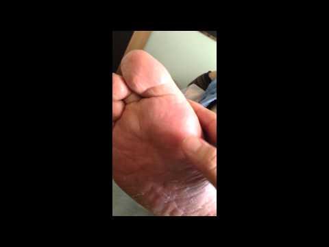 Pneumonia, Cold or Flu Symptoms? - Foot Reflexology Tip