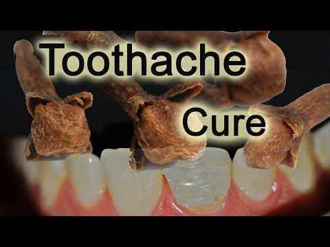 Toothache - Ayurveda Herbs Natural Home Remedies - Immediately stop TOOTHACHE