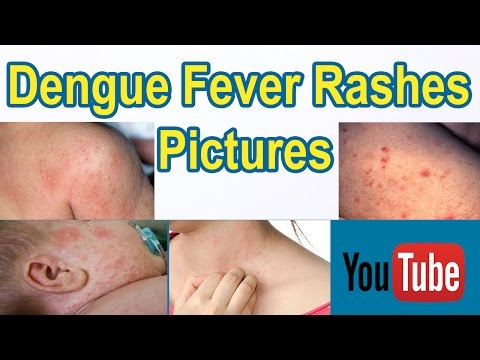 Dengue Fever Rashes Pictures | 7 Warning Signs Of Dengue Fever - Dengue Fever Symptoms Pictures