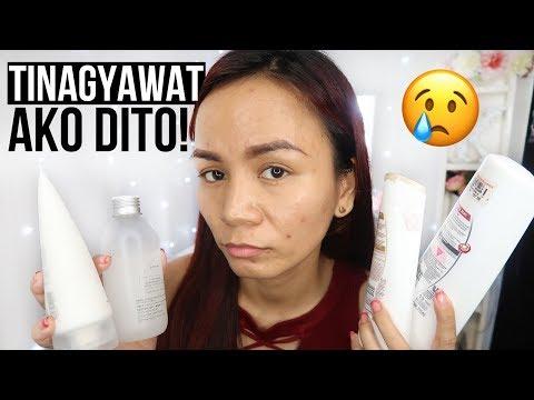 TINAGYAWAT AKO DAHIL DITO! | Acne Journey Ep. 1