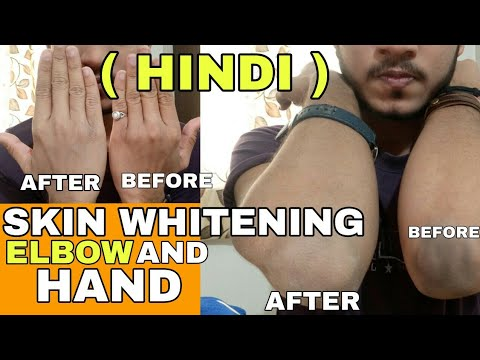 Skin Whitening For Elbows And Hands | Hindi | How To Lighten Dark Elbow | How To Lighten Dark Hand