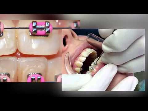 Public Aid (All Kids) Orthodontic Braces Waukegan IL