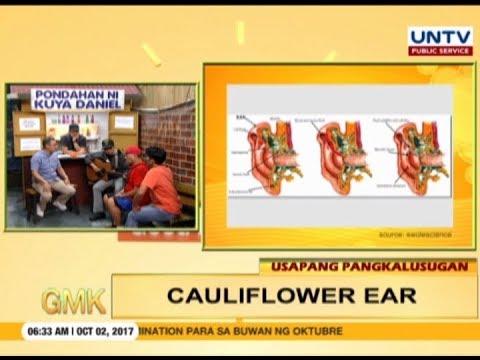 All about cauliflower ear   Usapang Pangkalusugan