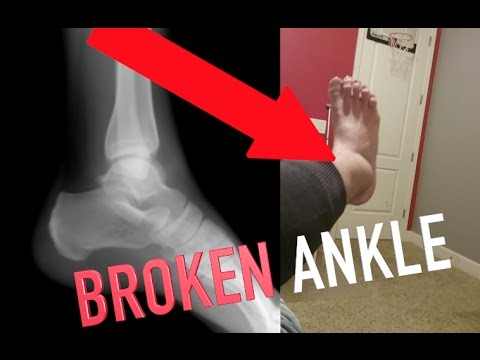 I BROKE MY ANKLE!!!