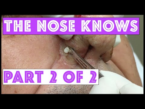 The Nose Knows: Part 2
