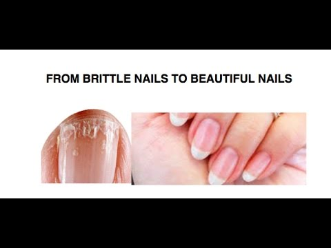 DIY Remedies: FROM BRITTLE NAILS TO BEAUTIFUL NAILS.
