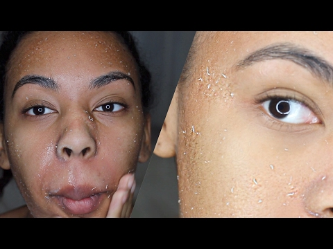 How to get rid of dry skin! Literally RUB all the DEAD SKIN off your FACE!