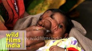 Baby girl born with a trunk worship as Lord Ganesha