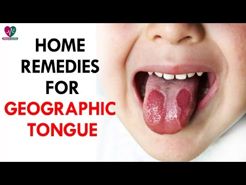 Home Remedies for Geographic Tongue - Health Sutra
