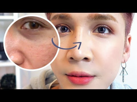 Getting Fillers for my Dark Circles + Smile Lines in Seoul - Edward Avila