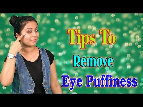 आँखों की सूजन कैसे दूर करें Tips To Remove Eye Puffiness | Home Remedy For Puffy Eyes