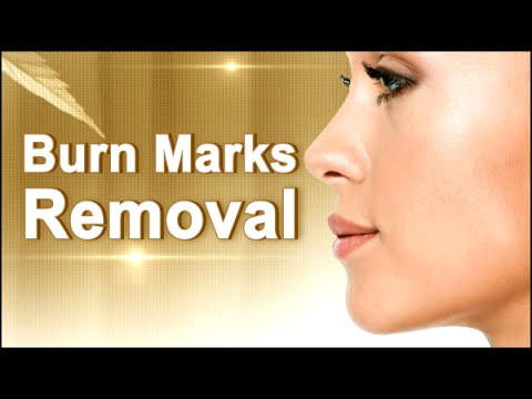 How to Remove Burn Marks naturally at home  | Natural Home Remedy for Burn Marks Removal