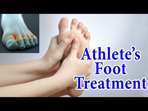 Athlete's Foot Fungal Infection Home Treatment | 5 Ways to Treat & Avoid Athlete's Foot at Home|