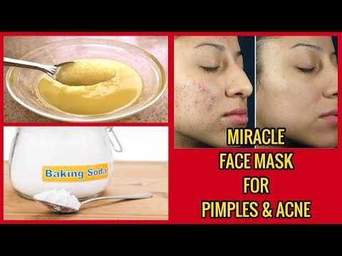 Miracle face mask for pimples and acne-baking soda honey olive oil mask
