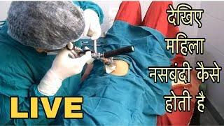 देखे महिला नस्बन्धी केसे होती हैं //female sterilization operation // mahila nasbandhi