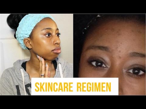 How I Cleared My Acne In 1 Week! | 2017