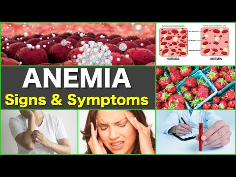 Anemia Symptoms Signs and Symptoms of Iron Deficiency Anemia