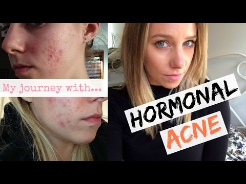 Hormonal Acne + The Pill: Curing My Hormonal Acne Naturally