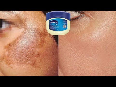 How To Use Vaseline To Remove Skin Pigmentation In Just 10 Days |  Home Remedies