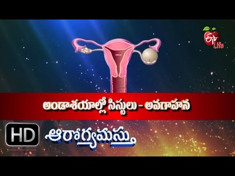 Aarogyamastu - Ovarian Cysts - 4th March 2016 - ఆరోగ్యమస్తు - Full Episode