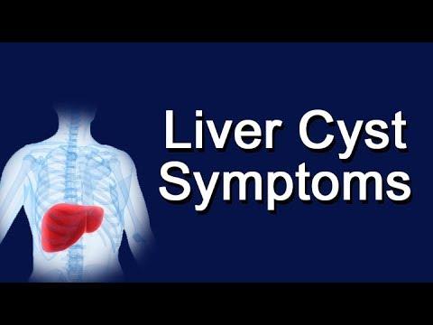 Liver Cyst Symptoms