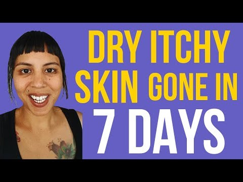 how to stop and get rid of and make itching itchy dry skin on legs at night go away fast video