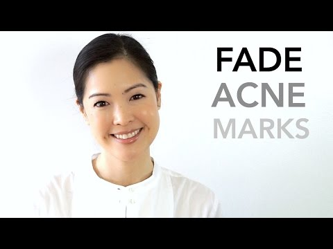 Fade and Minimize Acne Marks | PIE vs PIH