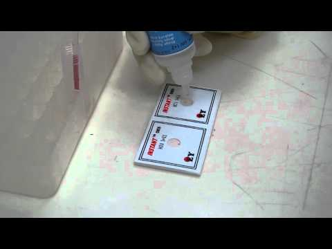 InstantChek HIV 1+2 POSITIVE assay procedure (60 SECONDS Test)